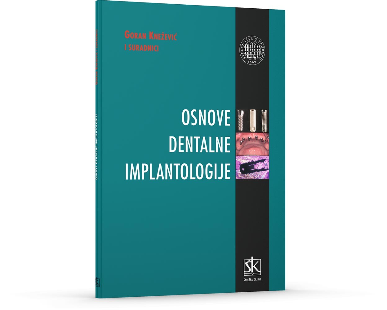 Osnove dentalne implantologije