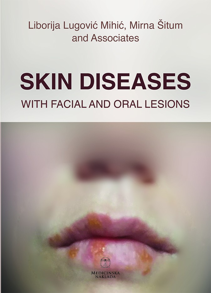 Skin diseases with facial and oral lesions